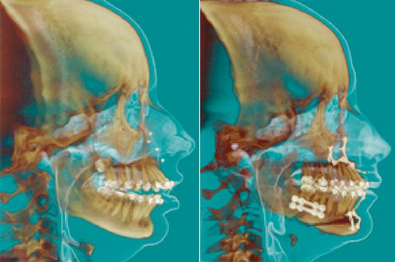 Aumento das vias aéreas após cirurgia ortognática